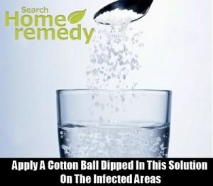 Saline solution for conjunctivitis